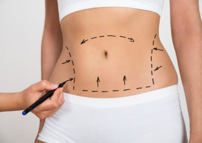 Abdominoplasty / Tummy tuck