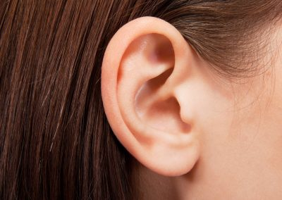 Prominent ear correction