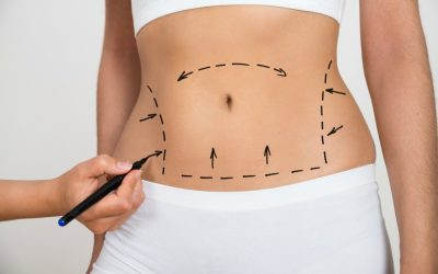 Tummy Tuck Surgery In Newcastle upon Tyne